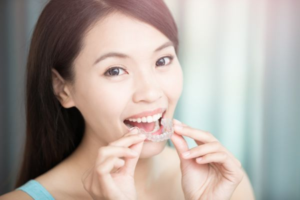Are You Considering Ceramic Braces?