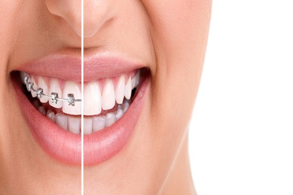 How Braces Can Improve Your Smile And Your Oral Health